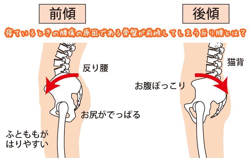 寝ている時の腰痛の原因 骨盤前傾と反り腰