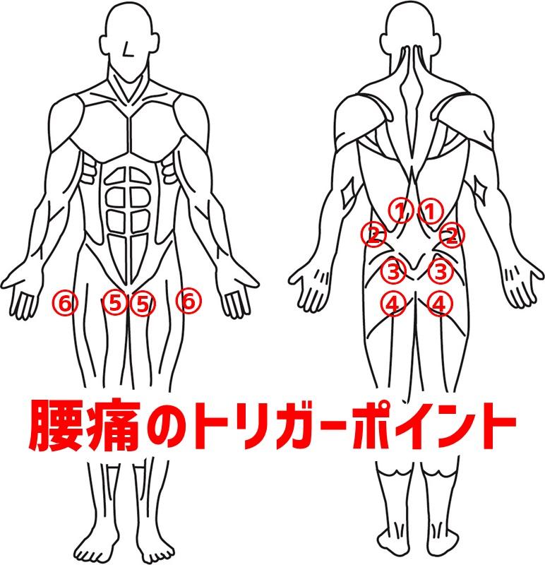 腰痛のトリガーポイント