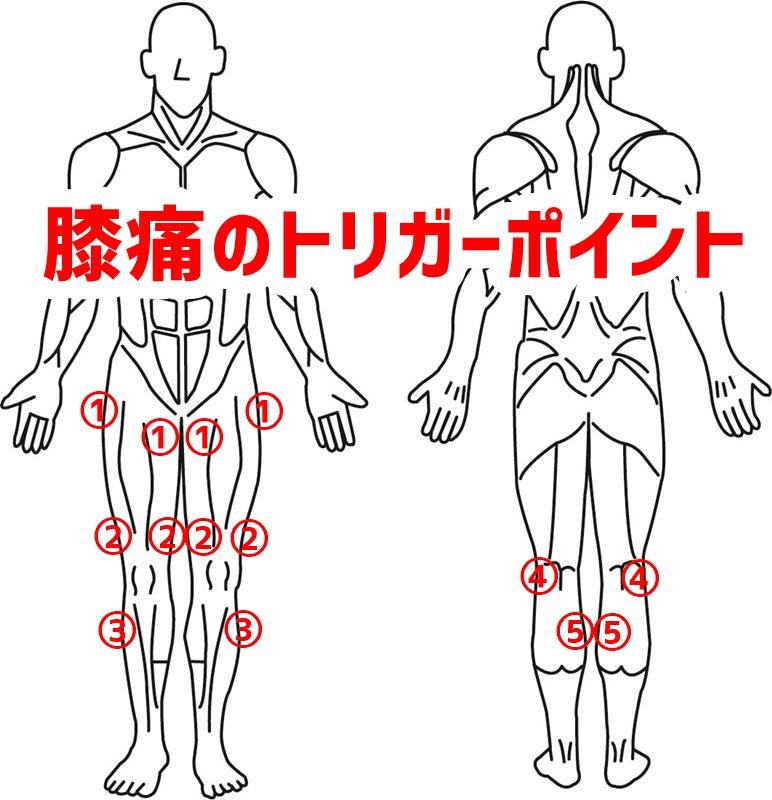 膝痛のトリガーポイント