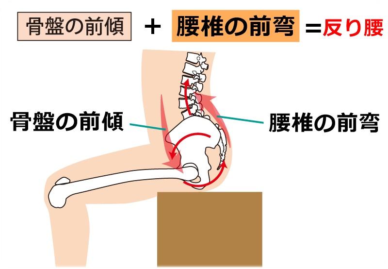 骨盤の前傾+腰椎の前弯=反り腰