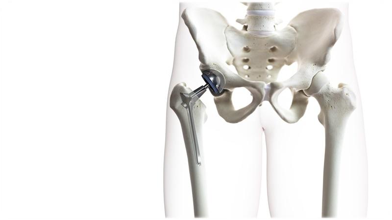 股関節 人工関節